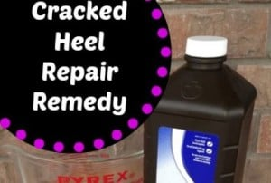 Cracked Heel Remedy –  For Super Soft Feet!