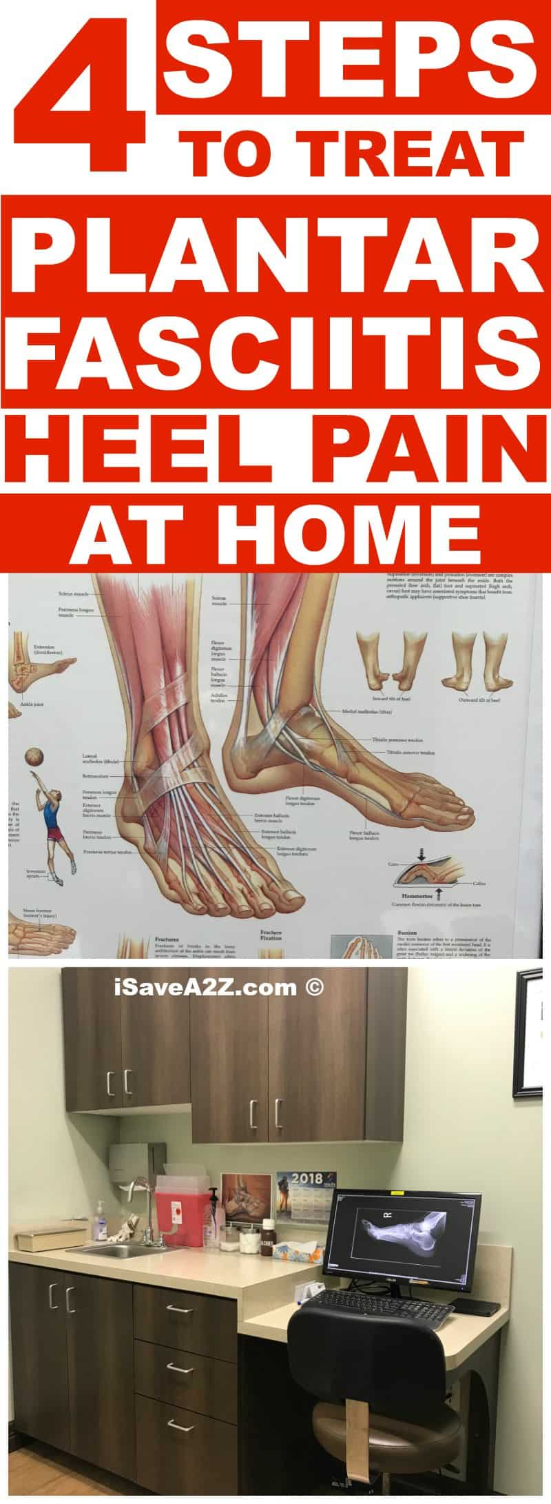 4 Steps To Treat Plantar Fasciitis Heel Pain At Home