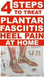 Plantar Fasciitis Treatments You Can Do At Home For Heel Pain!