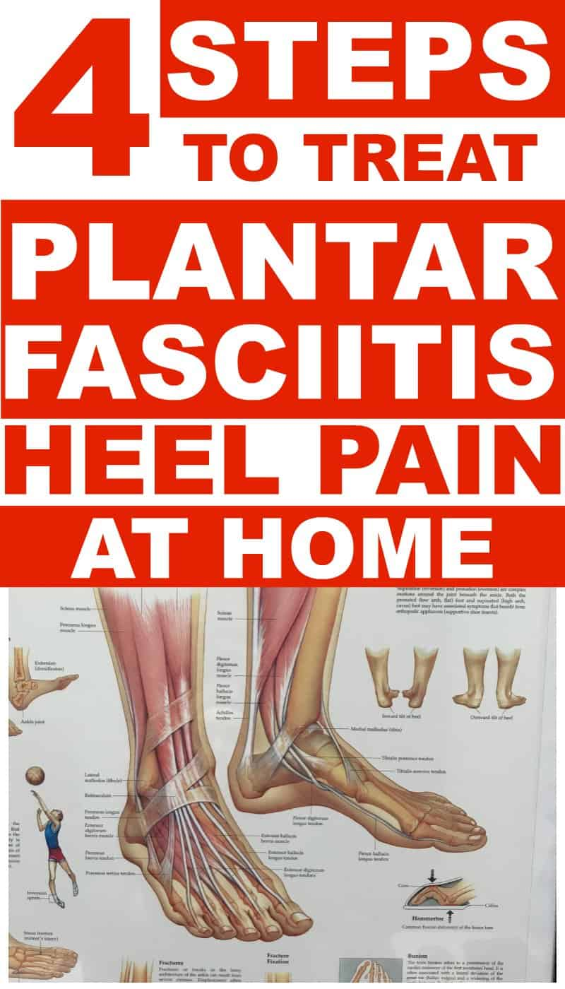 c56e3e9250e9 Plantar Fasciitis Treatments You Can Do At Home For Heel Pain ...